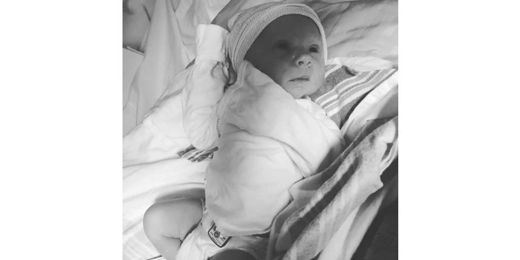 newborn baby with birthmark on face